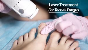 Laser Treatment For Toenail Fungus